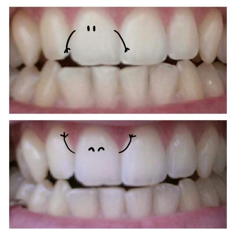 dentifrice blancheur maison